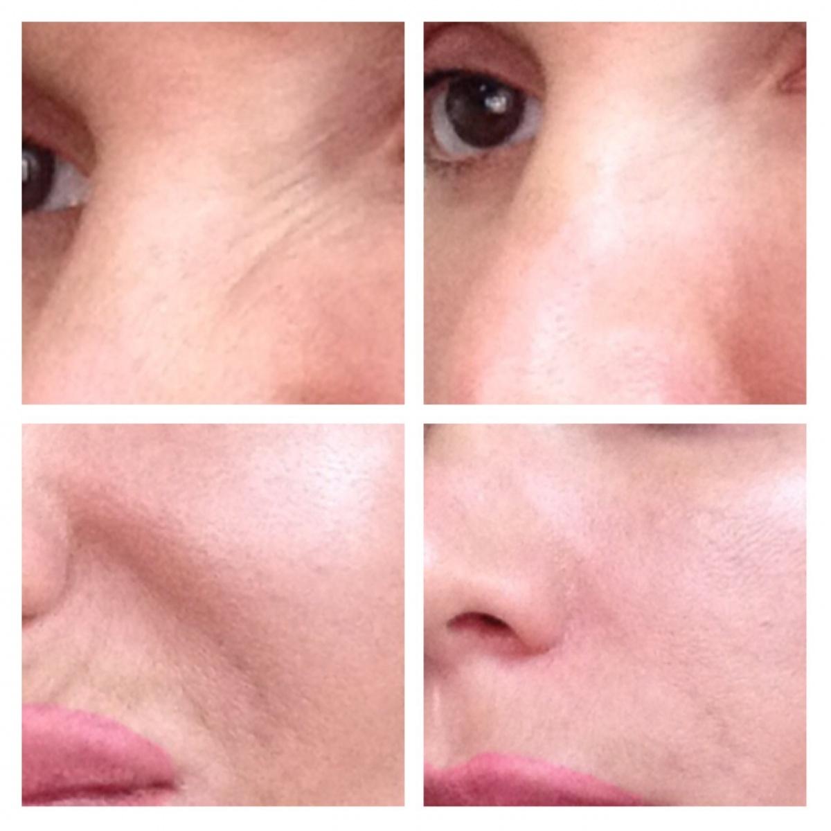 как убрать складки на лице возле носа